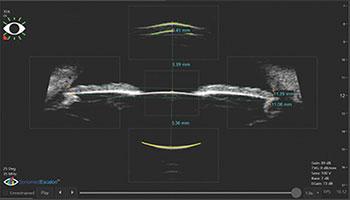 Офтальмологическая ультрозвуковая система Sonomed VuMaxHD